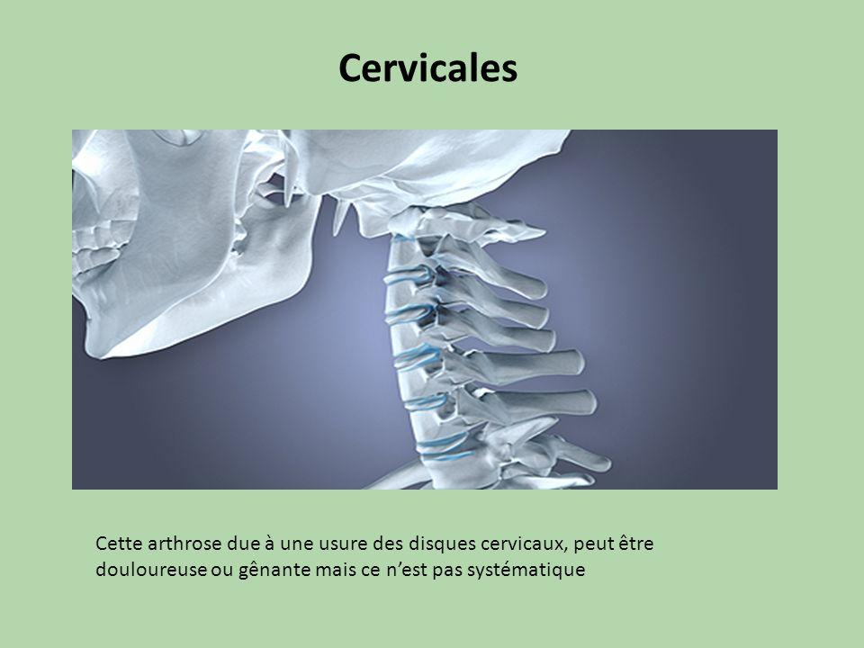 Cervicales Cette arthrose due à une usure des disques cervicaux, peut être douloureuse ou gênante mais ce nest pas systématique