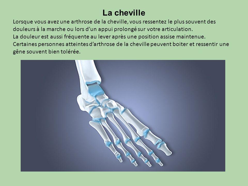 La cheville Lorsque vous avez une arthrose de la cheville, vous ressentez le plus souvent des douleurs à la marche ou lors dun appui prolongé sur votr