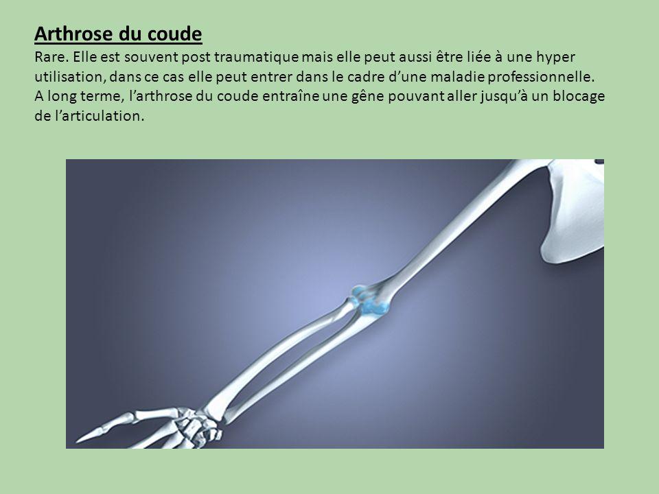 Les hanches Si vous souffrez dune arthrose de la hanche, il sagit dune usure de vos cartilages au niveau de votre hanche (cette articulation est située au niveau de la fesse en arrière et de laine en avant).