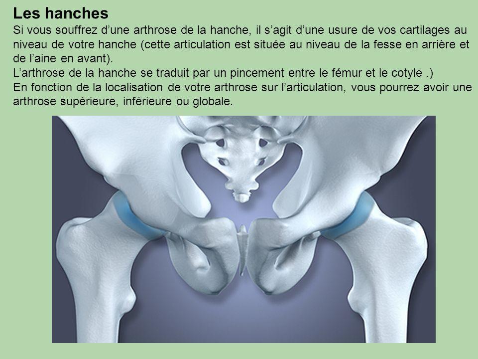 Les hanches Si vous souffrez dune arthrose de la hanche, il sagit dune usure de vos cartilages au niveau de votre hanche (cette articulation est situé