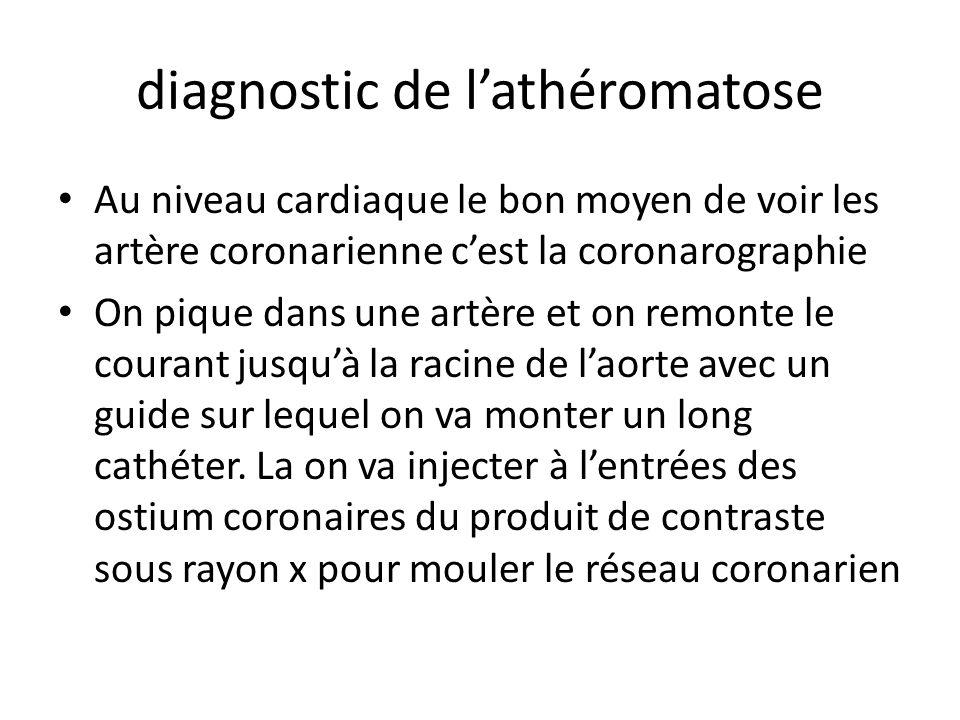 diagnostic de lathéromatose Au niveau cardiaque le bon moyen de voir les artère coronarienne cest la coronarographie On pique dans une artère et on remonte le courant jusquà la racine de laorte avec un guide sur lequel on va monter un long cathéter.