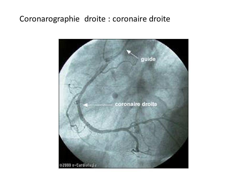 Coronarographie droite : coronaire droite