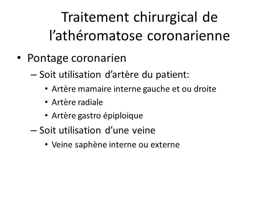 Traitement chirurgical de lathéromatose coronarienne Pontage coronarien – Soit utilisation dartère du patient: Artère mamaire interne gauche et ou dro