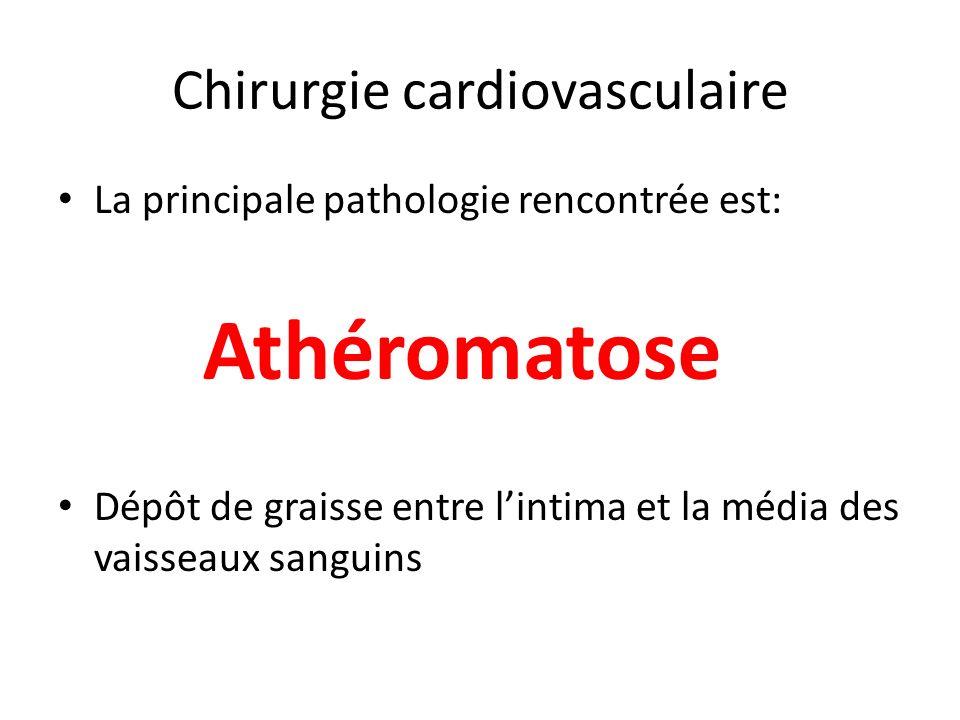 Chirurgie cardiovasculaire La principale pathologie rencontrée est: Dépôt de graisse entre lintima et la média des vaisseaux sanguins Athéromatose