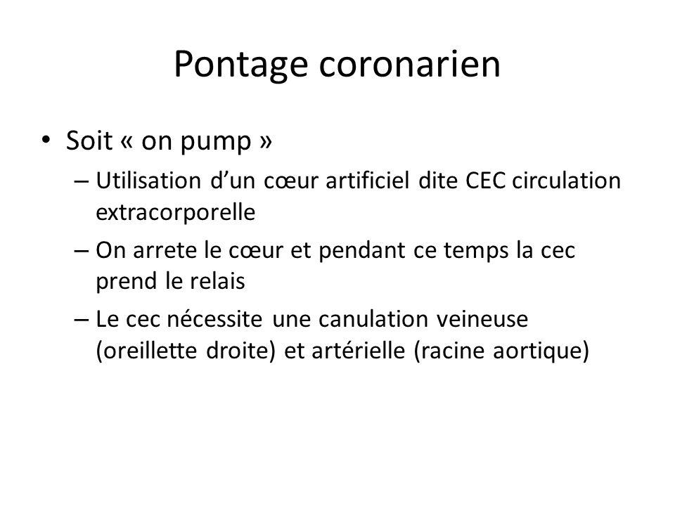 Pontage coronarien Soit « on pump » – Utilisation dun cœur artificiel dite CEC circulation extracorporelle – On arrete le cœur et pendant ce temps la cec prend le relais – Le cec nécessite une canulation veineuse (oreillette droite) et artérielle (racine aortique)