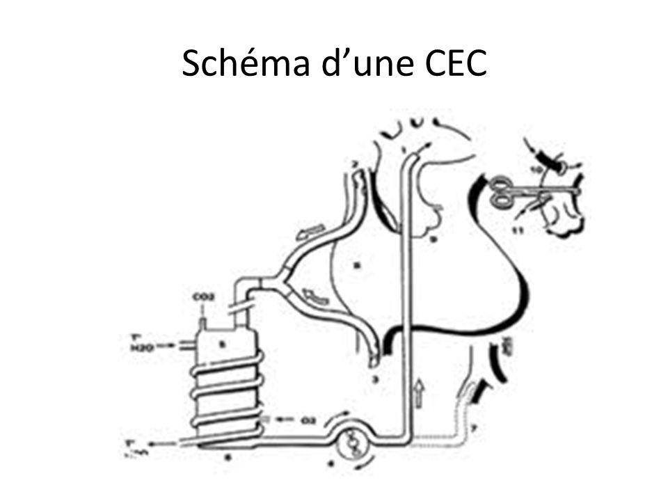 Schéma dune CEC