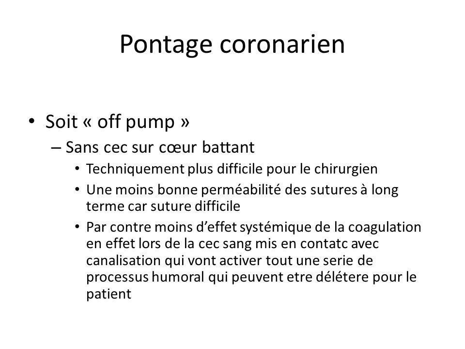 Pontage coronarien Soit « off pump » – Sans cec sur cœur battant Techniquement plus difficile pour le chirurgien Une moins bonne perméabilité des sutu