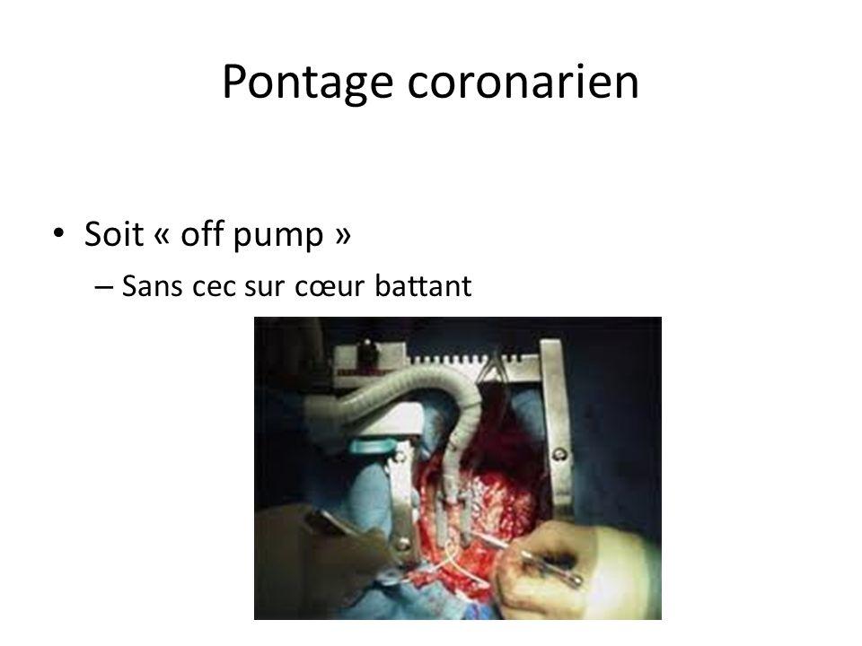Pontage coronarien Soit « off pump » – Sans cec sur cœur battant