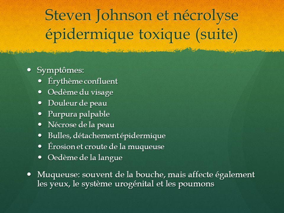 Steven Johnson et nécrolyse épidermique toxique (suite) Symptômes: Symptômes: Érythème confluent Érythème confluent Oedème du visage Oedème du visage