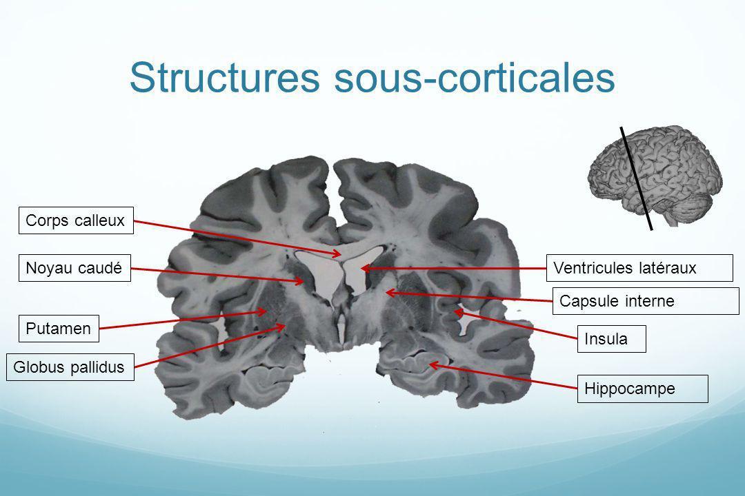 Structures sous-corticales Putamen Corps calleuxVentricules latéraux Insula Noyau caudé Hippocampe Capsule interne Globus pallidus