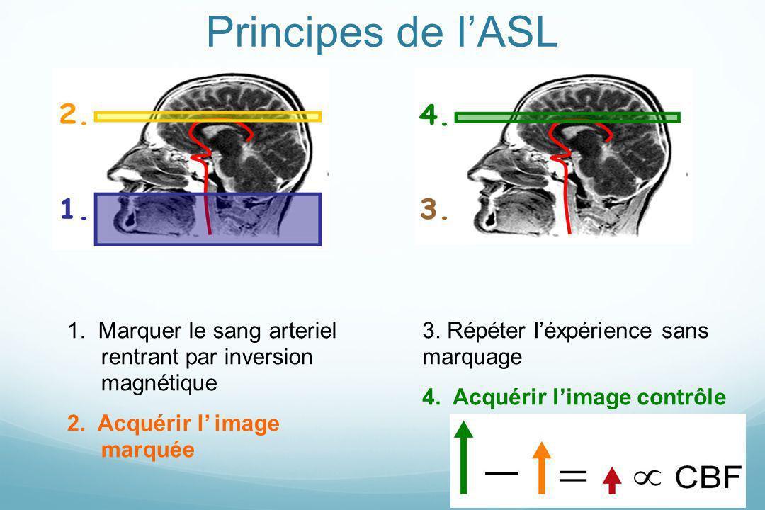 Principes de lASL 1. Marquer le sang arteriel rentrant par inversion magnétique 2. Acquérir l image marquée 3. Répéter léxpérience sans marquage 4. Ac
