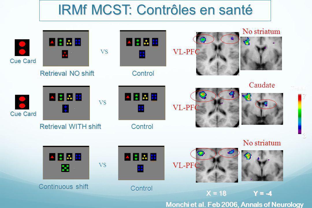 IRMf MCST: Contrôles en santé 3 7T-stat Cue Card Cue Card Retrieval NO shift Retrieval NO shift VS Control Cue Card Cue Card Retrieval WITH shift Cont