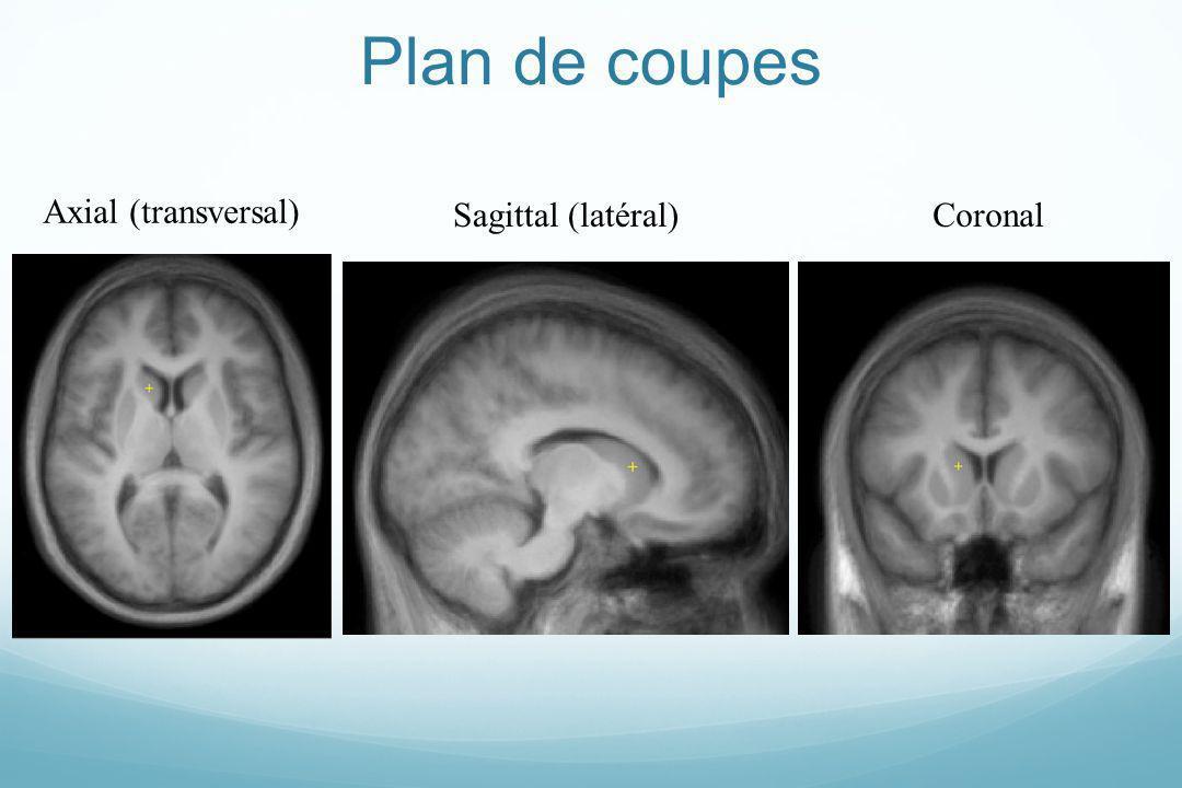 Plan de coupes Axial (transversal) Sagittal (latéral)Coronal