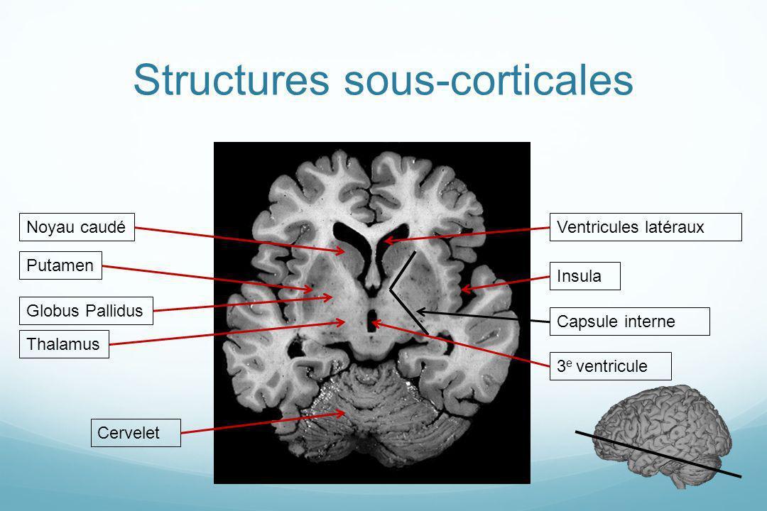 Structures sous-corticales PutamenGlobus PallidusNoyau caudéVentricules latérauxInsula Capsule interne Thalamus 3 e ventricule Cervelet