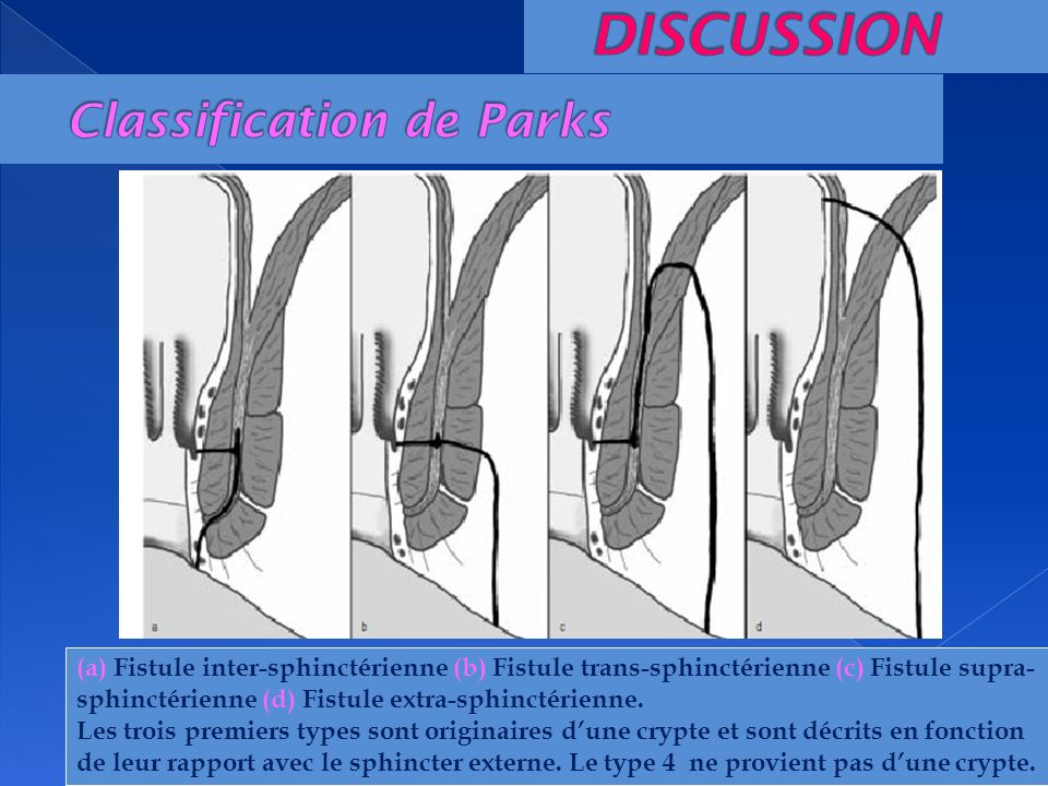 (a) Fistule inter-sphinctérienne (b) Fistule trans-sphinctérienne (c) Fistule supra- sphinctérienne (d) Fistule extra-sphinctérienne. Les trois premie