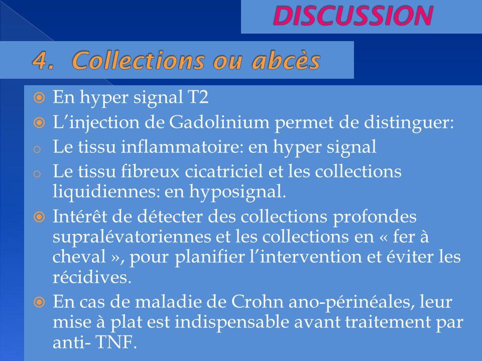 En hyper signal T2 Linjection de Gadolinium permet de distinguer: o Le tissu inflammatoire: en hyper signal o Le tissu fibreux cicatriciel et les coll