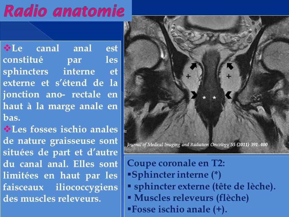 T2 T1 FS Gado Le sphincter interne (tête de flèche) est un muscle lisse qui correspond au prolongement de la couche musculaire circulaire du rectum.