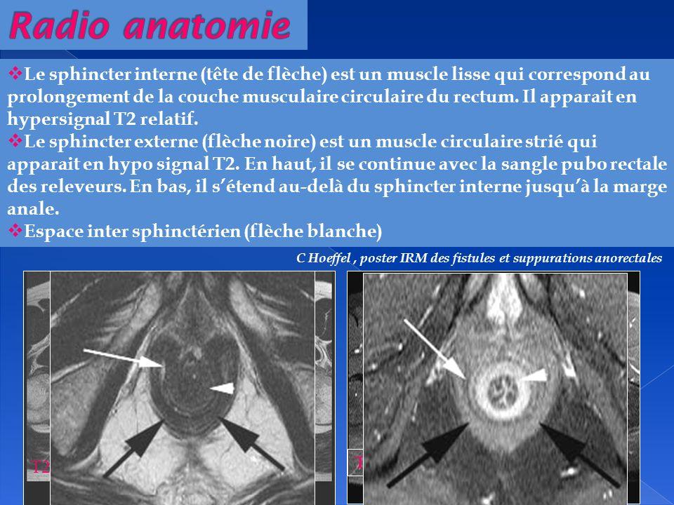 T2 T1 FS Gado Le sphincter interne (tête de flèche) est un muscle lisse qui correspond au prolongement de la couche musculaire circulaire du rectum. I