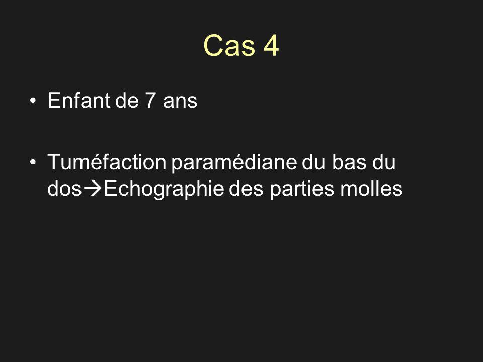 Cas 4 Enfant de 7 ans Tuméfaction paramédiane du bas du dos Echographie des parties molles