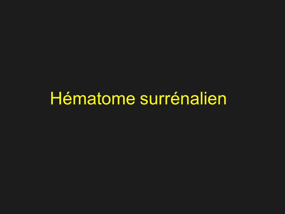 Message 1 Contrôle à 1 semaine Hématome: liquéfaction
