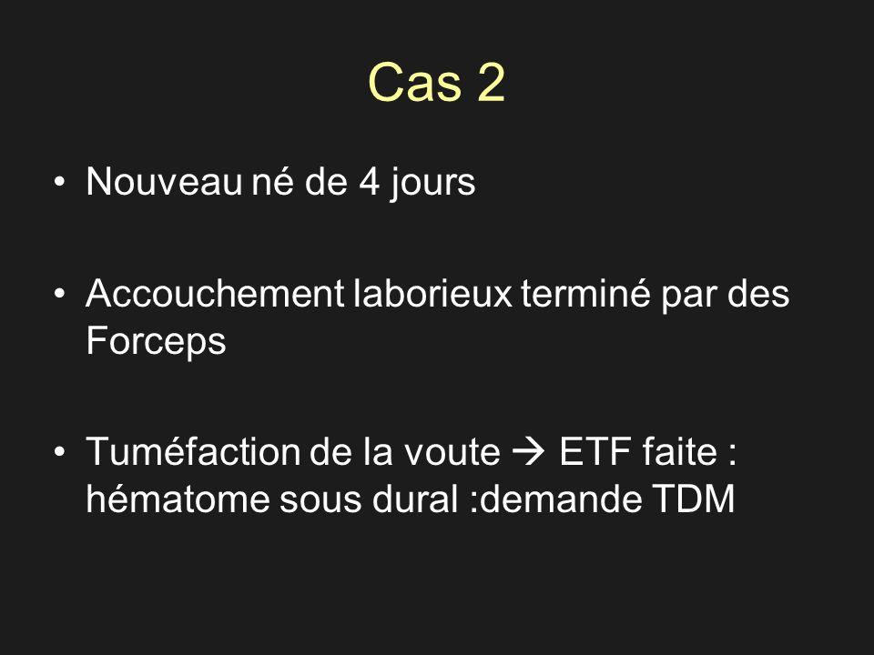 Cas 2 Nouveau né de 4 jours Accouchement laborieux terminé par des Forceps Tuméfaction de la voute ETF faite : hématome sous dural :demande TDM