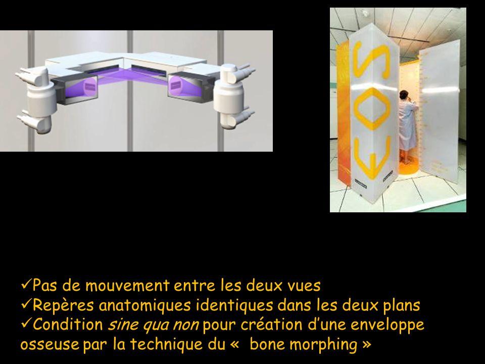 Pas de mouvement entre les deux vues Pas de mouvement entre les deux vues Repères anatomiques identiques dans les deux plans Repères anatomiques ident