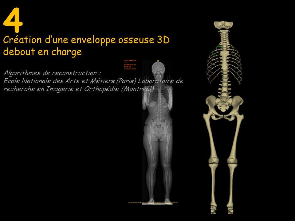 4 Algorithmes de reconstruction : Ecole Nationale des Arts et Métiers (Paris) Laboratoire de recherche en Imagerie et Orthopédie (Montréal)