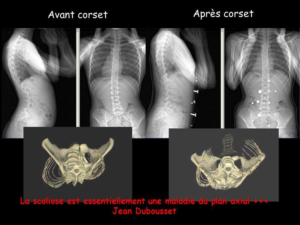 Avant corset Après corset La scoliose est essentiellement une maladie du plan axial +++ Jean Dubousset