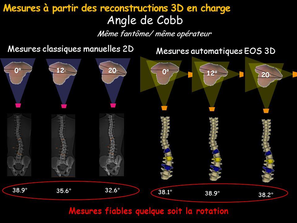 Mesures classiques manuelles 2D 20 20 ° 32.6° 12 12 ° 35.6° 0° 38.9° Même fantôme/ même opérateur Angle de Cobb Mesures à partir des reconstructions 3