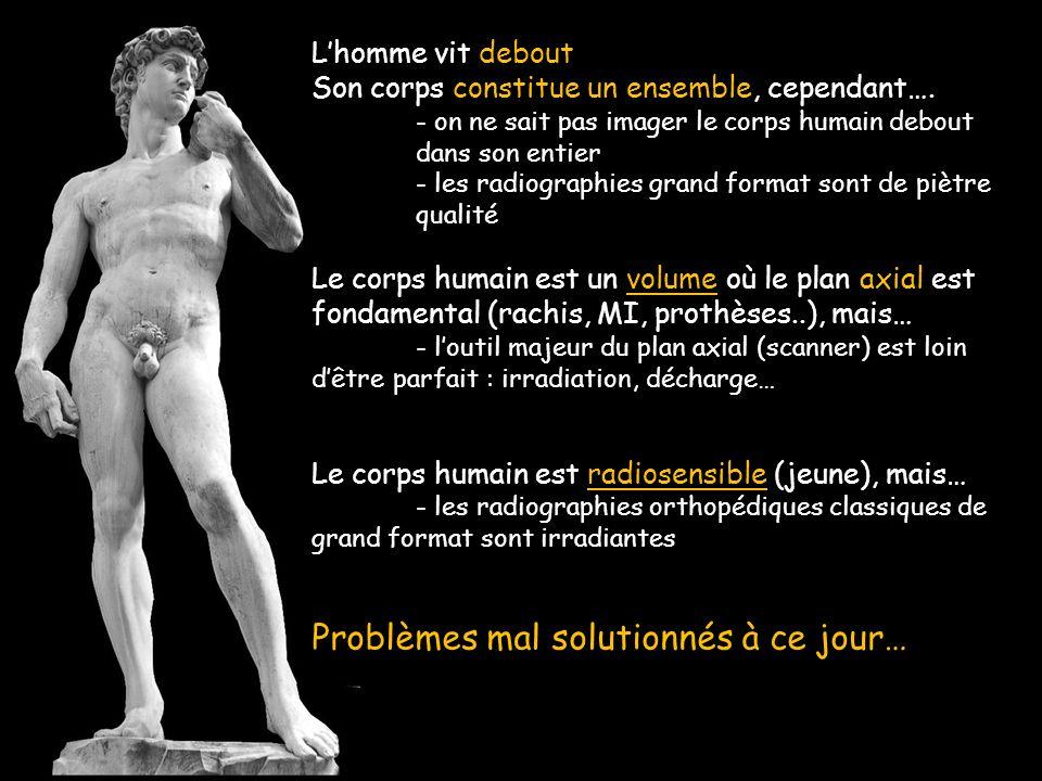 Lhomme vit debout Son corps constitue un ensemble, cependant…. - on ne sait pas imager le corps humain debout dans son entier - les radiographies gran
