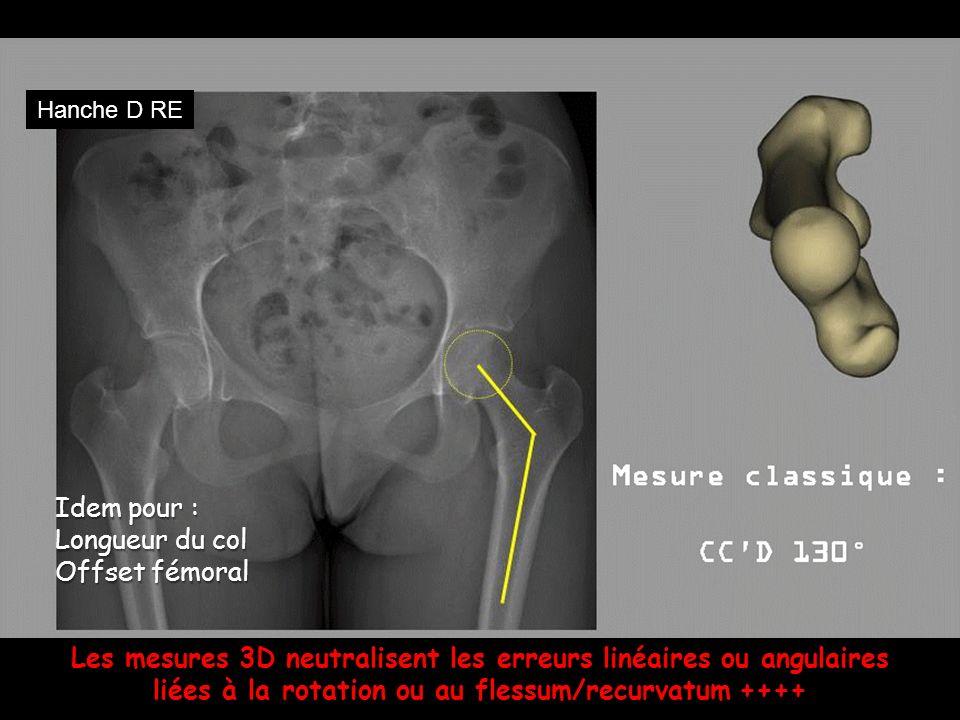 Les mesures 3D neutralisent les erreurs linéaires ou angulaires liées à la rotation ou au flessum/recurvatum ++++ Idem pour : Longueur du col Offset f