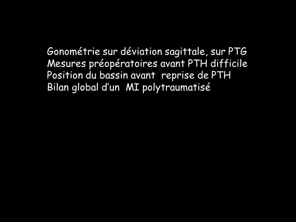 Gonométrie sur déviation sagittale, sur PTG Mesures préopératoires avant PTH difficile Position du bassin avant reprise de PTH Bilan global dun MI pol
