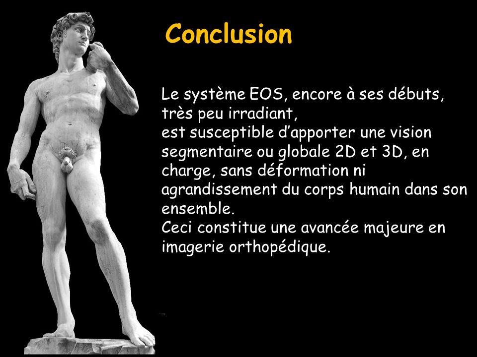 Conclusion Le système EOS, encore à ses débuts, très peu irradiant, est susceptible dapporter une vision segmentaire ou globale 2D et 3D, en charge, s