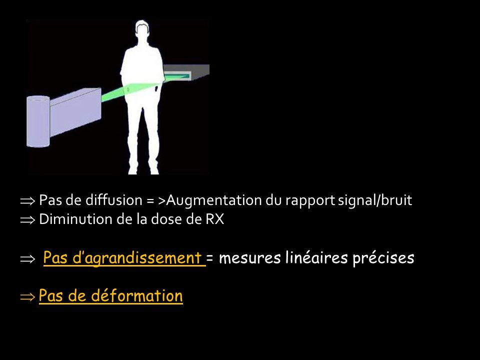 Pas de diffusion = >Augmentation du rapport signal/bruit Diminution de la dose de RX Pas dagrandissement = mesures linéaires précises Pas dagrandissem