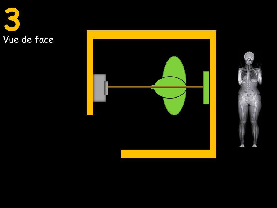 Vue de face Vue de profil Vue de face et de profil simultanée3