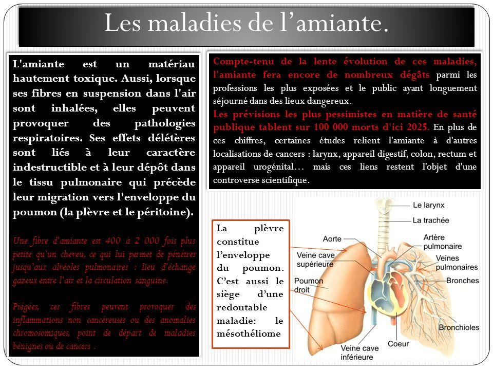 Les maladies de lamiante. L'amiante est un matériau hautement toxique. Aussi, lorsque ses fibres en suspension dans l'air sont inhalées, elles peuvent