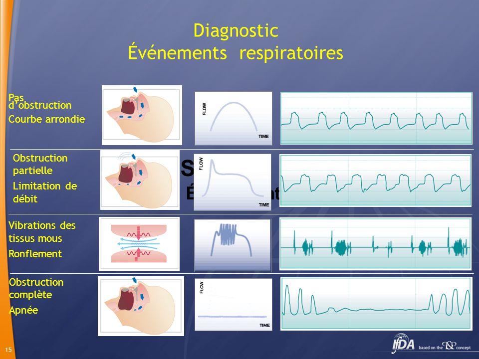 15 Diagnostic Événements respiratoires Signaux Événements Obstruction complète Apnée Vibrations des tissus mous Ronflement Obstruction partielle Limit