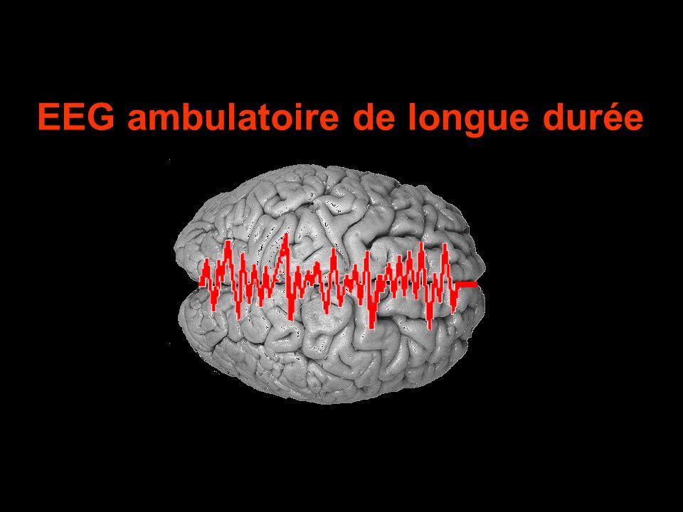EEG ambulatoire de longue durée