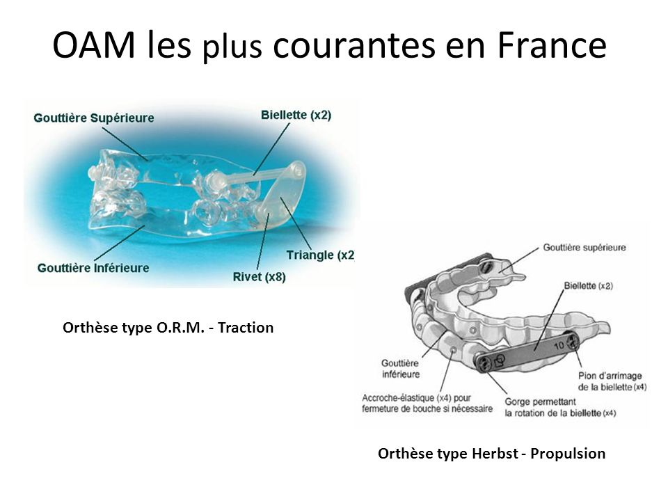 OAM les plus courantes en France Orthèse type O.R.M. - Traction Orthèse type Herbst - Propulsion