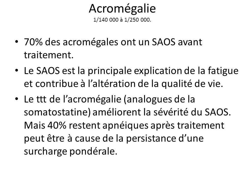 Acromégalie 1/140 000 à 1/250 000. 70% des acromégales ont un SAOS avant traitement. Le SAOS est la principale explication de la fatigue et contribue