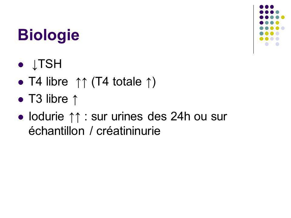 Biologie TSH T4 libre (T4 totale ) T3 libre Iodurie : sur urines des 24h ou sur échantillon / créatininurie