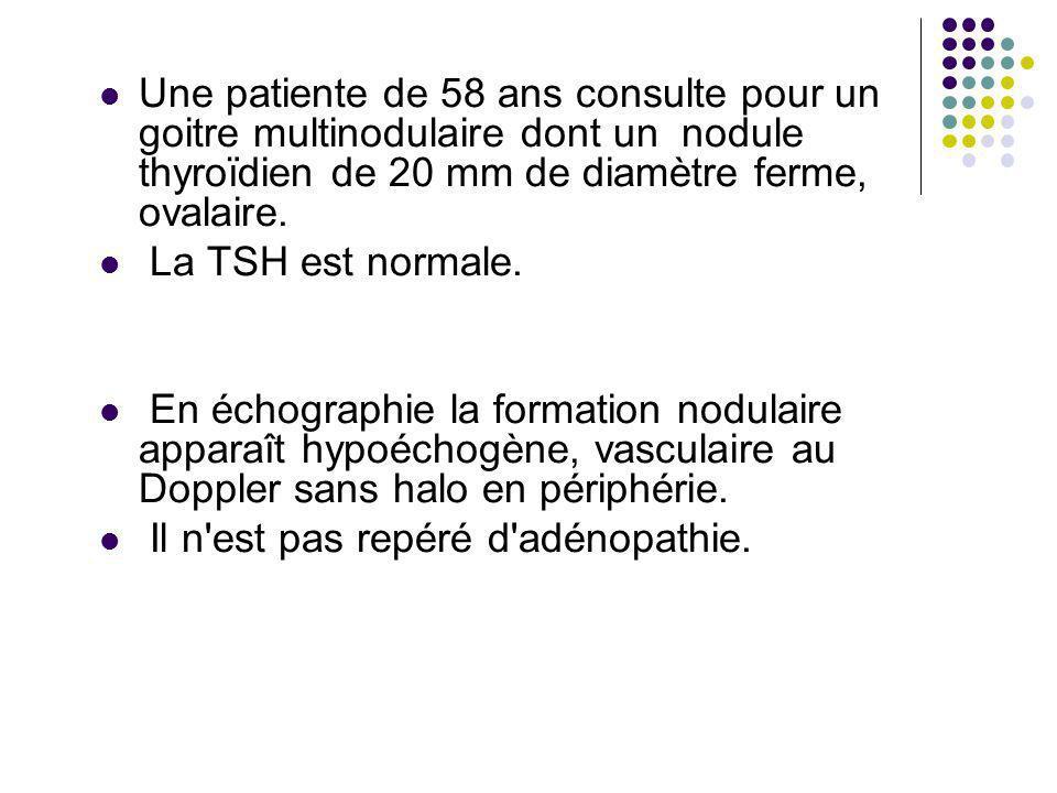 Une patiente de 58 ans consulte pour un goitre multinodulaire dont un nodule thyroïdien de 20 mm de diamètre ferme, ovalaire. La TSH est normale. En é