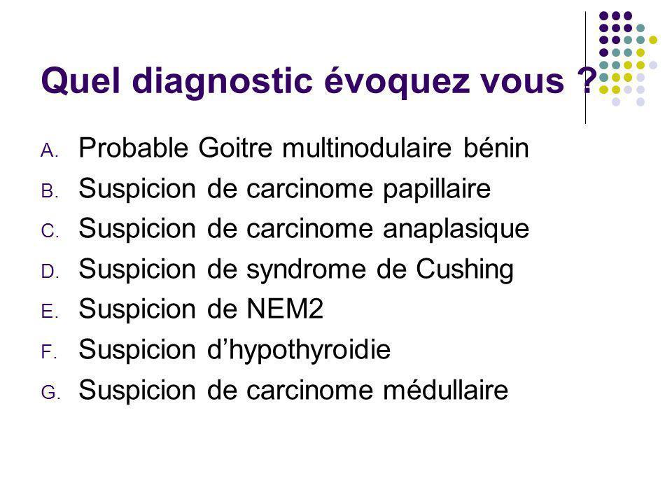 Quel diagnostic évoquez vous ? A. Probable Goitre multinodulaire bénin B. Suspicion de carcinome papillaire C. Suspicion de carcinome anaplasique D. S