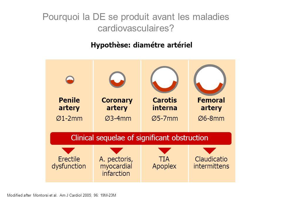 Pourquoi la DE se produit avant les maladies cardiovasculaires? Modified after Montorsi et al. Am J Cardiol 2005; 96: 19M-23M Hypothèse: diamétre arté