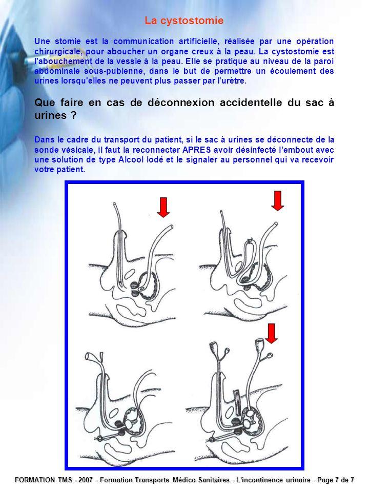 La cystostomie Une stomie est la communication artificielle, réalisée par une opération chirurgicale, pour aboucher un organe creux à la peau. La cyst