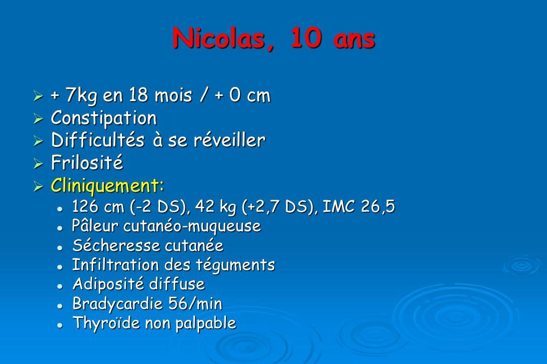 + 7kg en 18 mois / + 0 cm + 7kg en 18 mois / + 0 cm Constipation Constipation Difficultés à se réveiller Difficultés à se réveiller Frilosité Frilosité Cliniquement: Cliniquement: 126 cm (-2 DS), 42 kg (+2,7 DS), IMC 26,5 126 cm (-2 DS), 42 kg (+2,7 DS), IMC 26,5 Pâleur cutanéo-muqueuse Pâleur cutanéo-muqueuse Sécheresse cutanée Sécheresse cutanée Infiltration des téguments Infiltration des téguments Adiposité diffuse Adiposité diffuse Bradycardie 56/min Bradycardie 56/min Thyroïde non palpable Thyroïde non palpable Nicolas, 10 ans