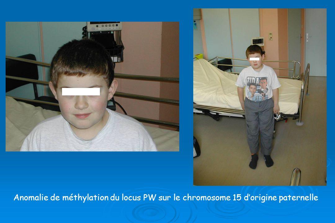 Anomalie de méthylation du locus PW sur le chromosome 15 dorigine paternelle