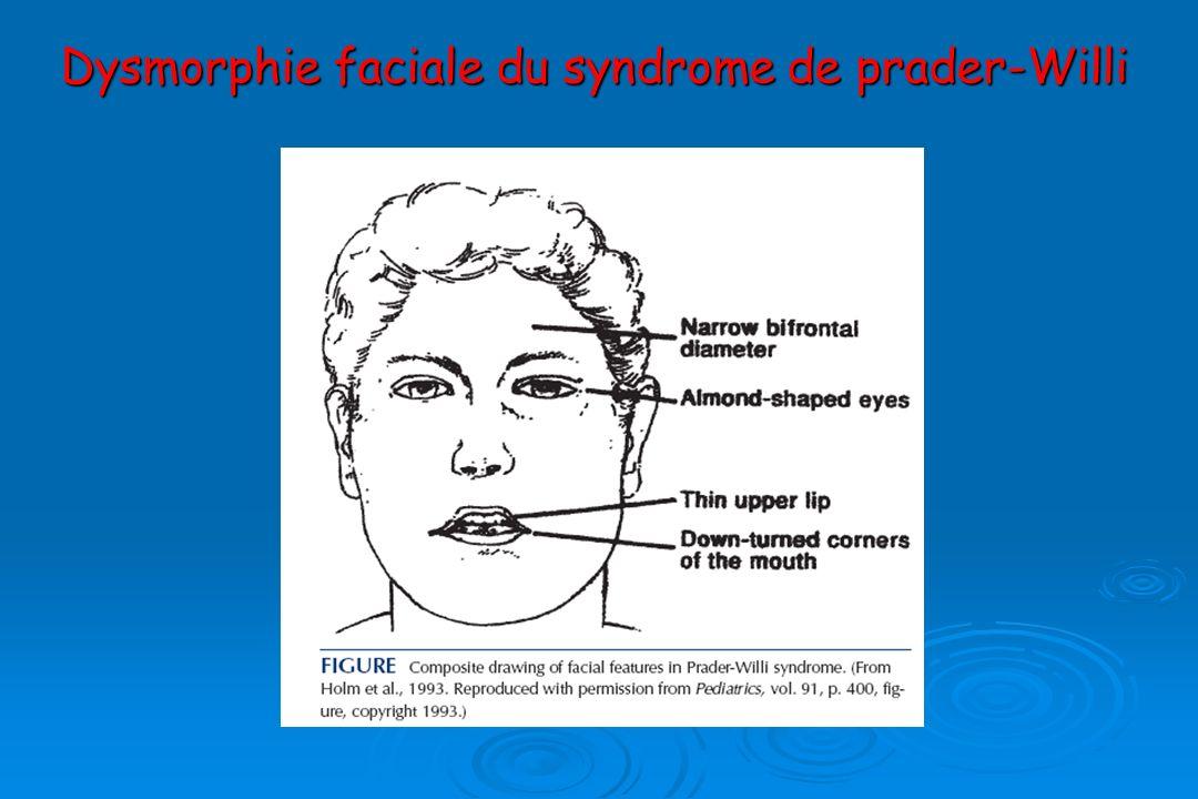 Dysmorphie faciale du syndrome de prader-Willi