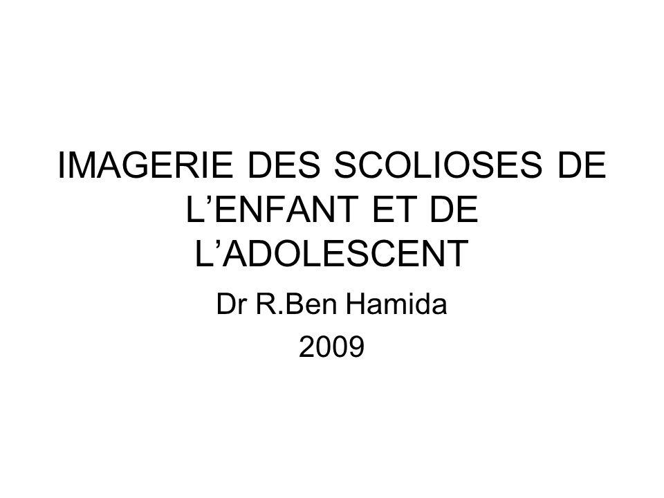 IMAGERIE DES SCOLIOSES DE LENFANT ET DE LADOLESCENT Dr R.Ben Hamida 2009