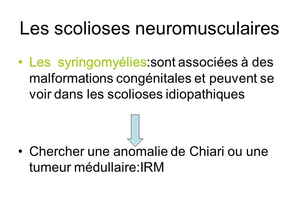 Les scolioses neuromusculaires Les syringomyélies:sont associées à des malformations congénitales et peuvent se voir dans les scolioses idiopathiques